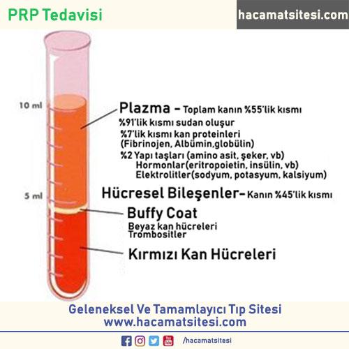 PRP Tedavisi Nasıl Yapılır