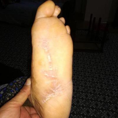Buerger ayak ve diyabet ayak yarasının tedavisi